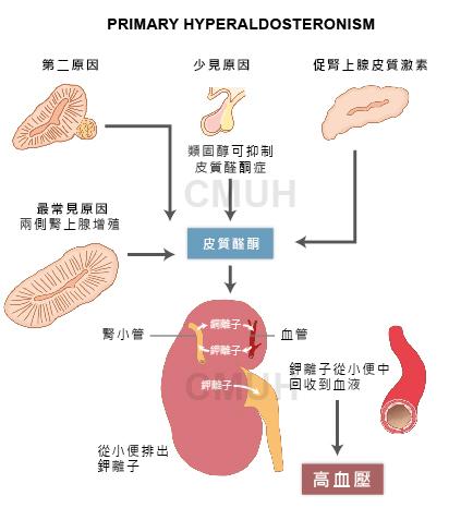原發性皮質醛酮過多症