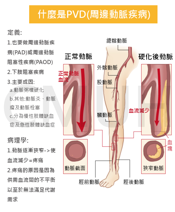 下肢周邊動脈阻塞性疾病