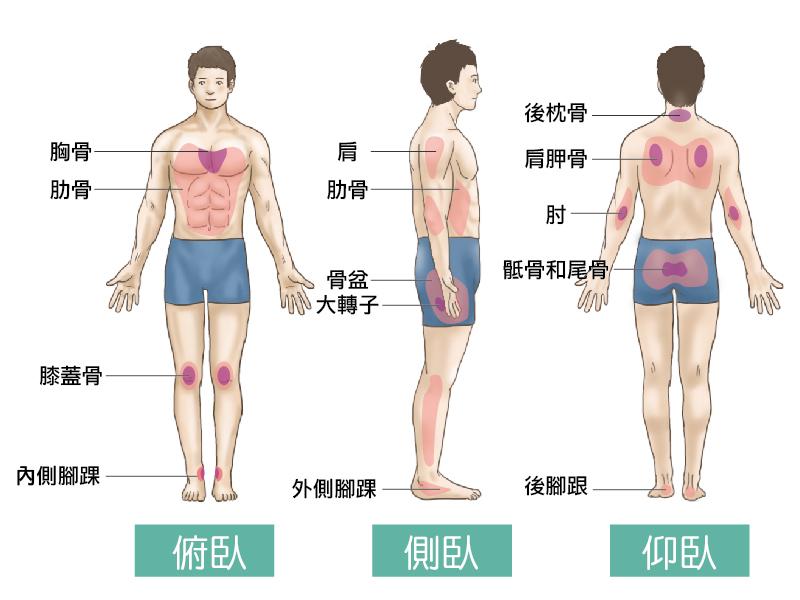 壓瘡的預防與治療