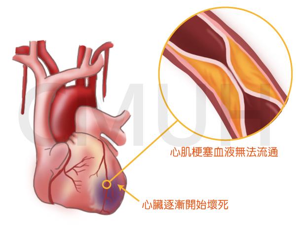 心絞痛與心肌梗塞症狀之差異