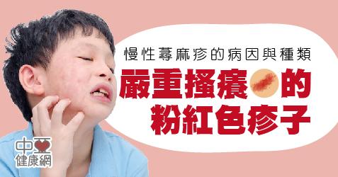 慢性蕁麻疹