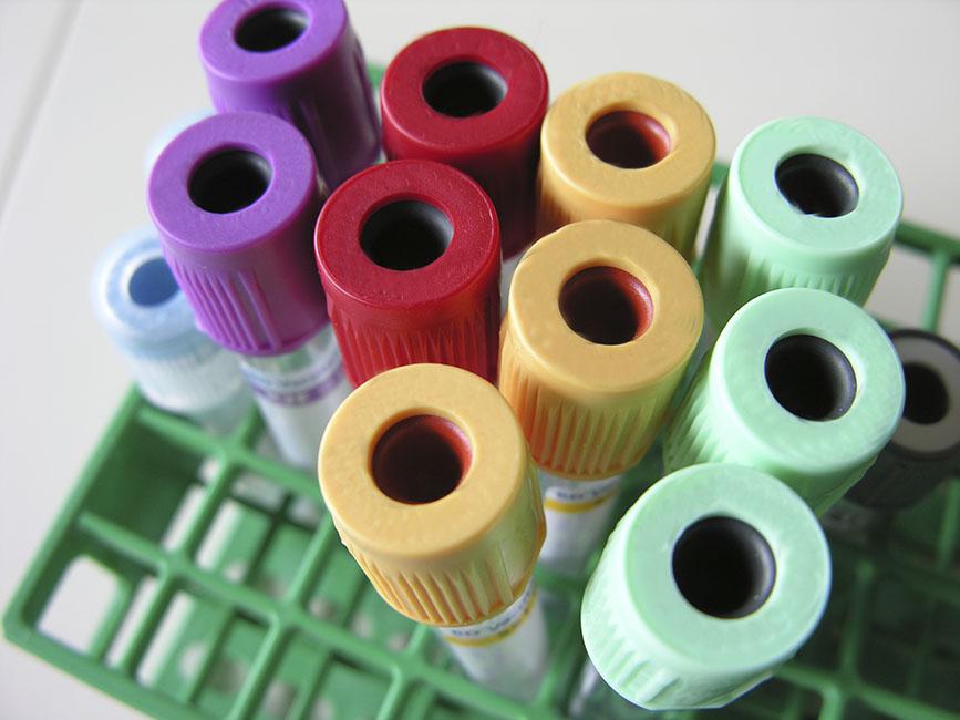 抽血檢查可診斷類風濕性關節炎嗎