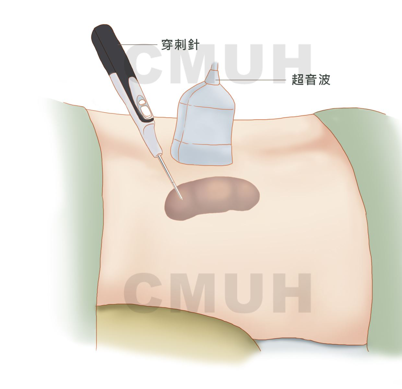 淋巴瘤切片檢查