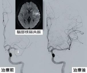 缺血性腦中風患者施行經腦動脈血栓去除術後對照圖