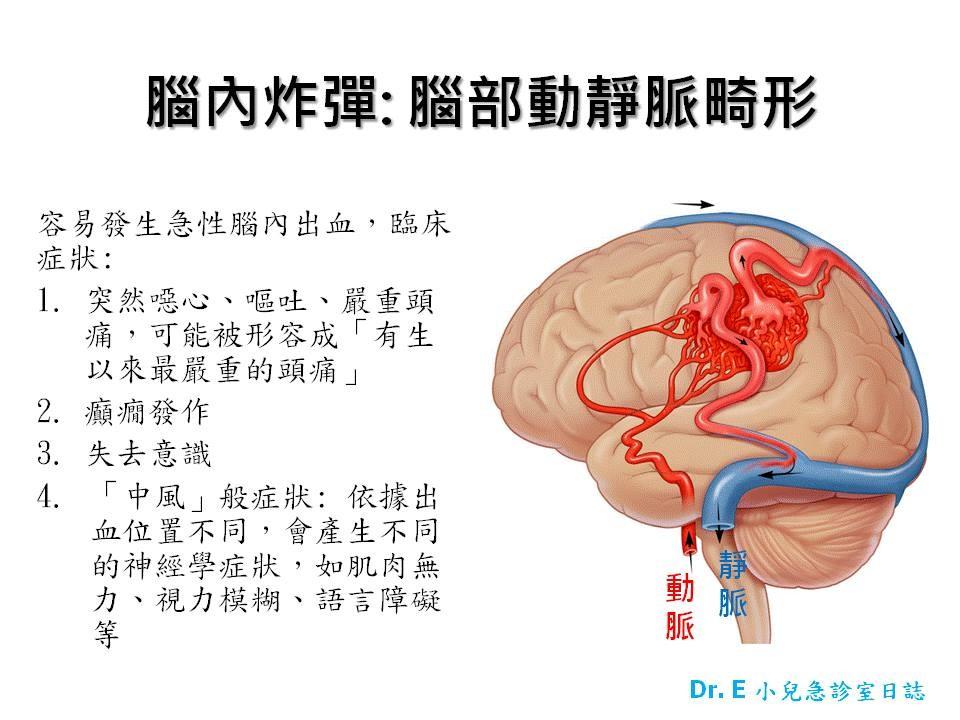 腦部動靜脈畸形