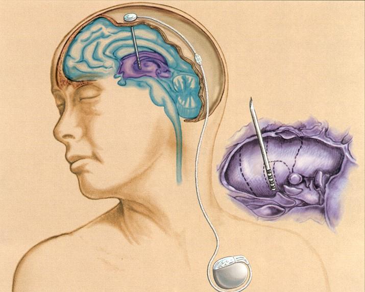 腦晶片刺激治療法可使顫抖症狀顯著改善