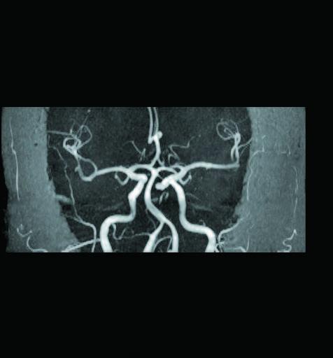 腦部核磁共振的腦血管組像