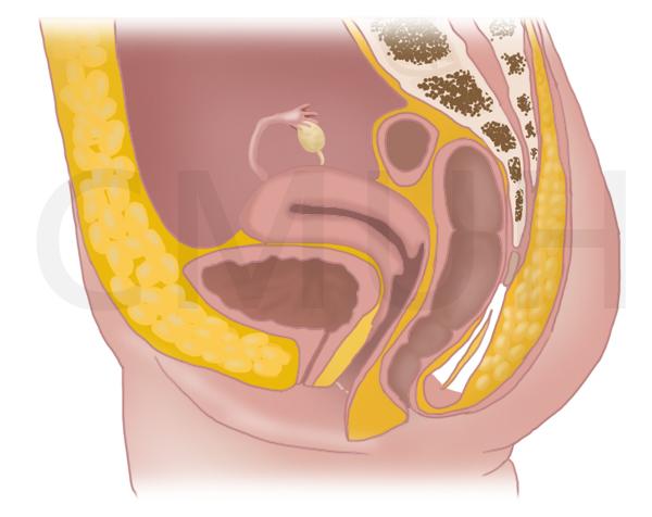 正常骨盆腔