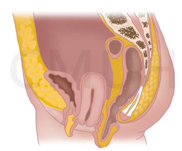 骨盆韌帶鬆弛之子宮下垂