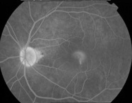 螢光血管攝影