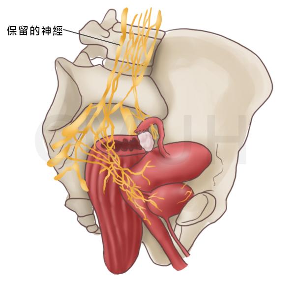 神經保留子宮根除手術