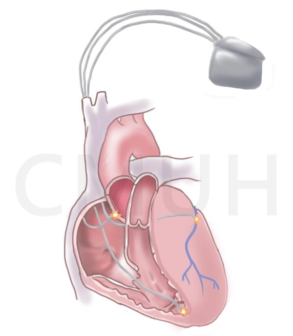 雙心室再同步心律調節器