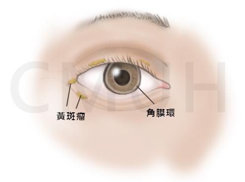 高脂血症黃斑瘤