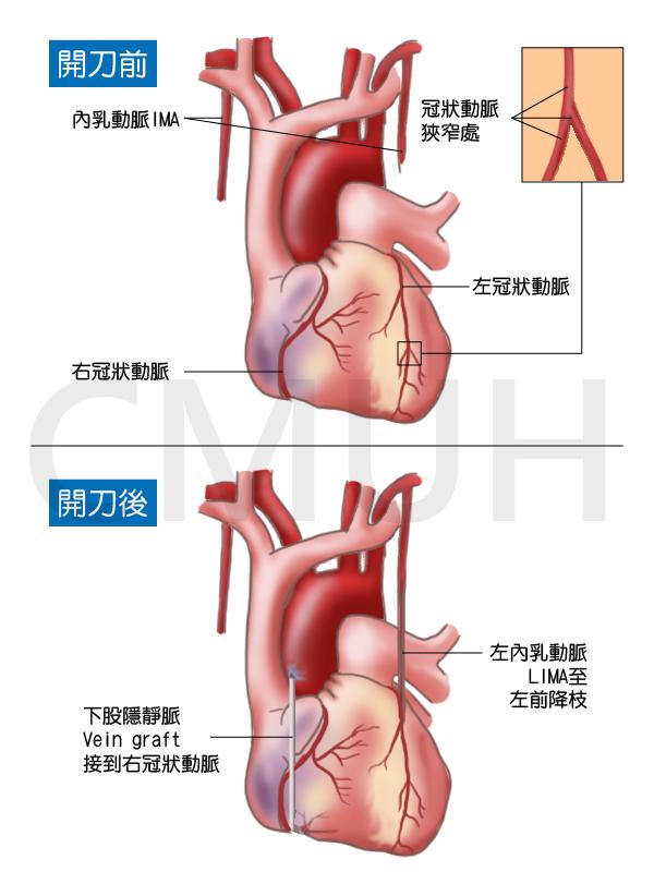 冠狀動脈繞道手術