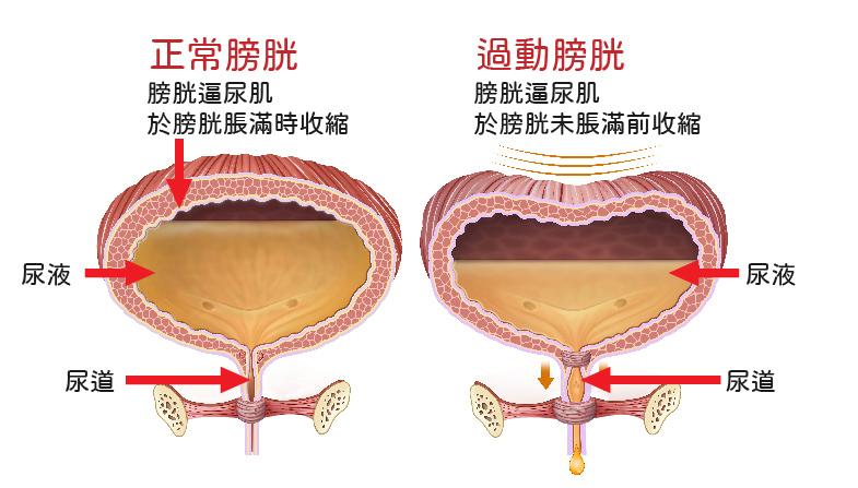 膀胱過動症