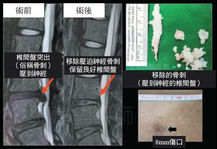 新式脊椎內視鏡微創手術治療