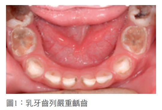 圖1:乳牙齒列嚴重齲齒
