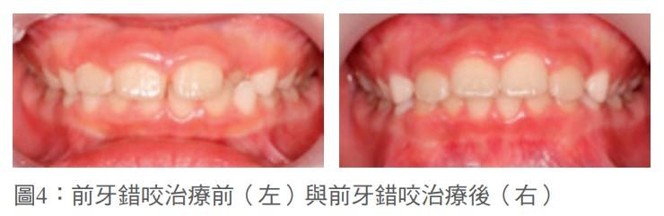 圖4:前牙錯咬治療前(左)與前牙錯咬治療後(右)