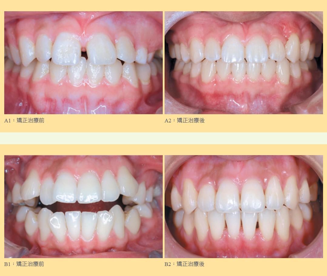 牙齒矯正治療