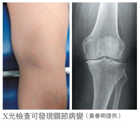 X光檢查可發現關節病變(黃春明提供)