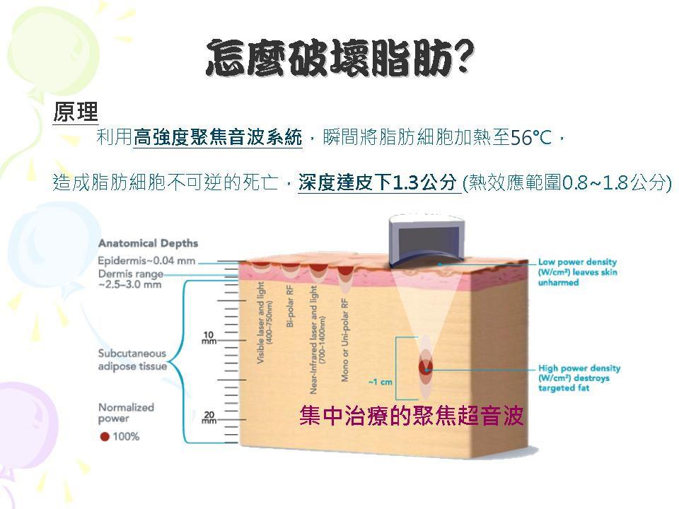 liposonix立塑超聲波溶脂