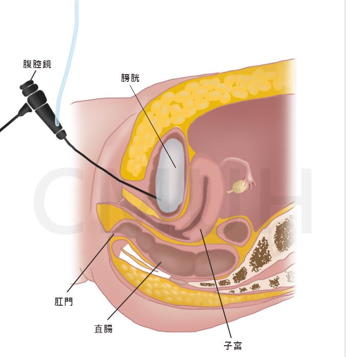 膀胱鏡| 中亞健康網- 用心傳遞每...