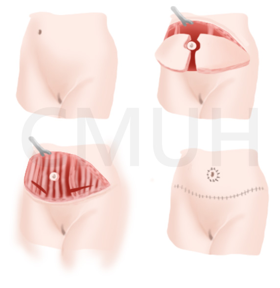 腹部整形手術