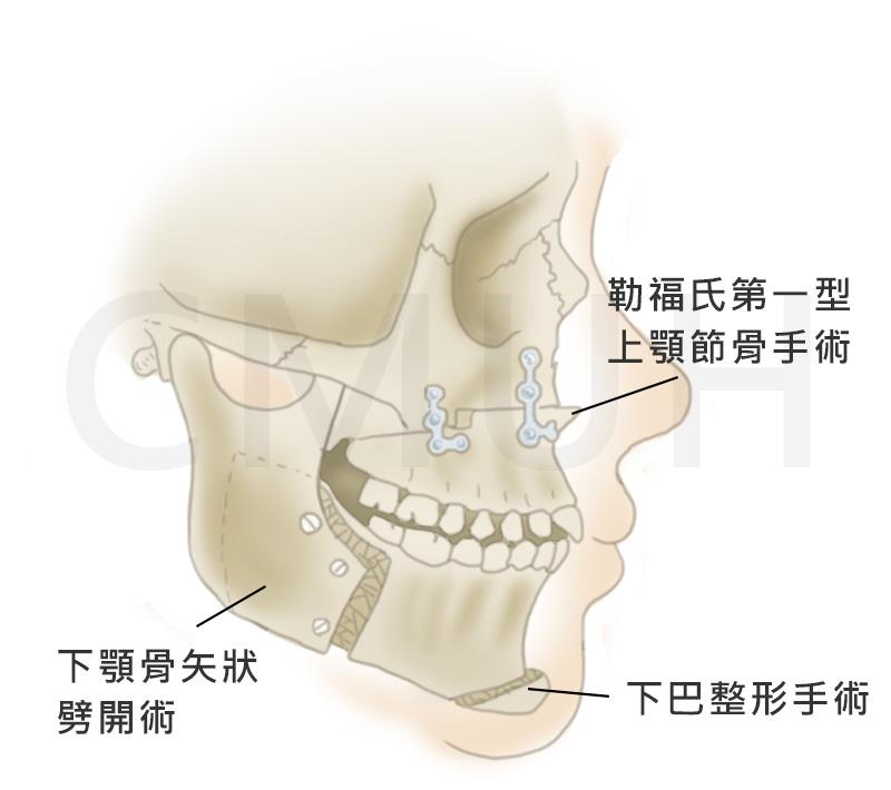 下巴整形手術