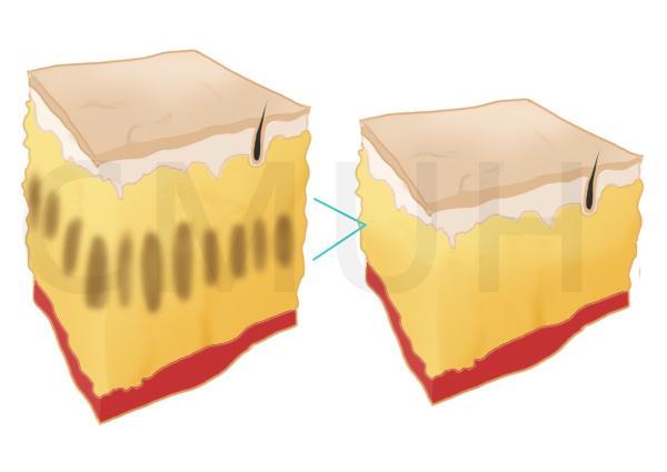 立塑超聲波溶脂