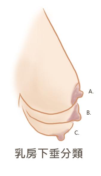 乳房下垂分類