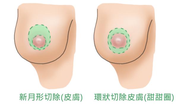 提乳手術2
