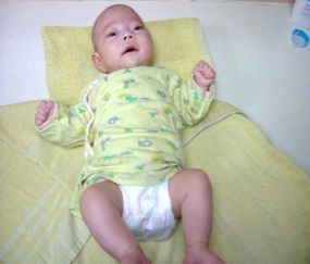 新生兒臍帶護理