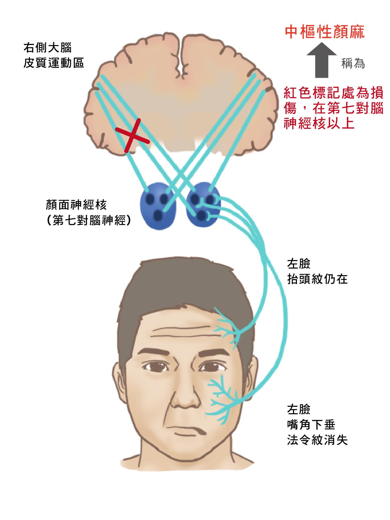 周邊性顏面神經麻痺