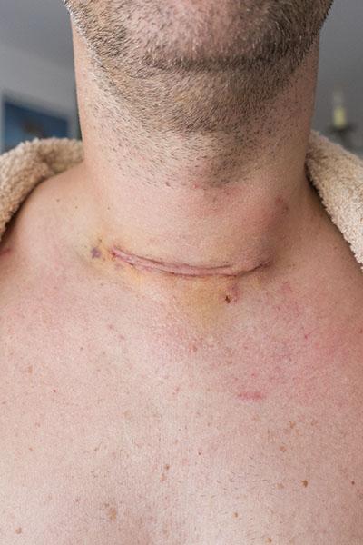 甲狀腺手術
