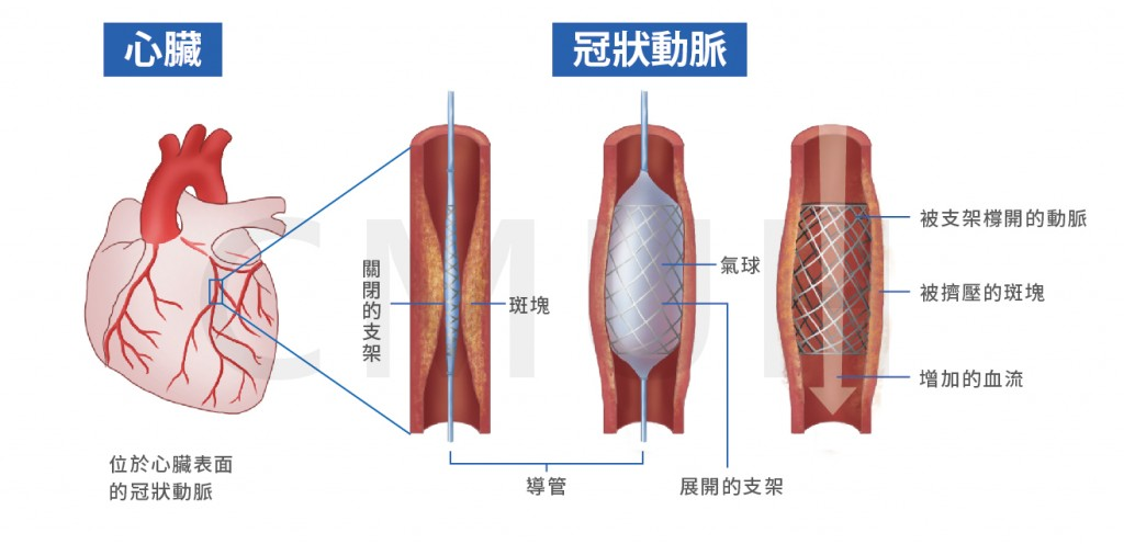 冠狀動脈介入治療