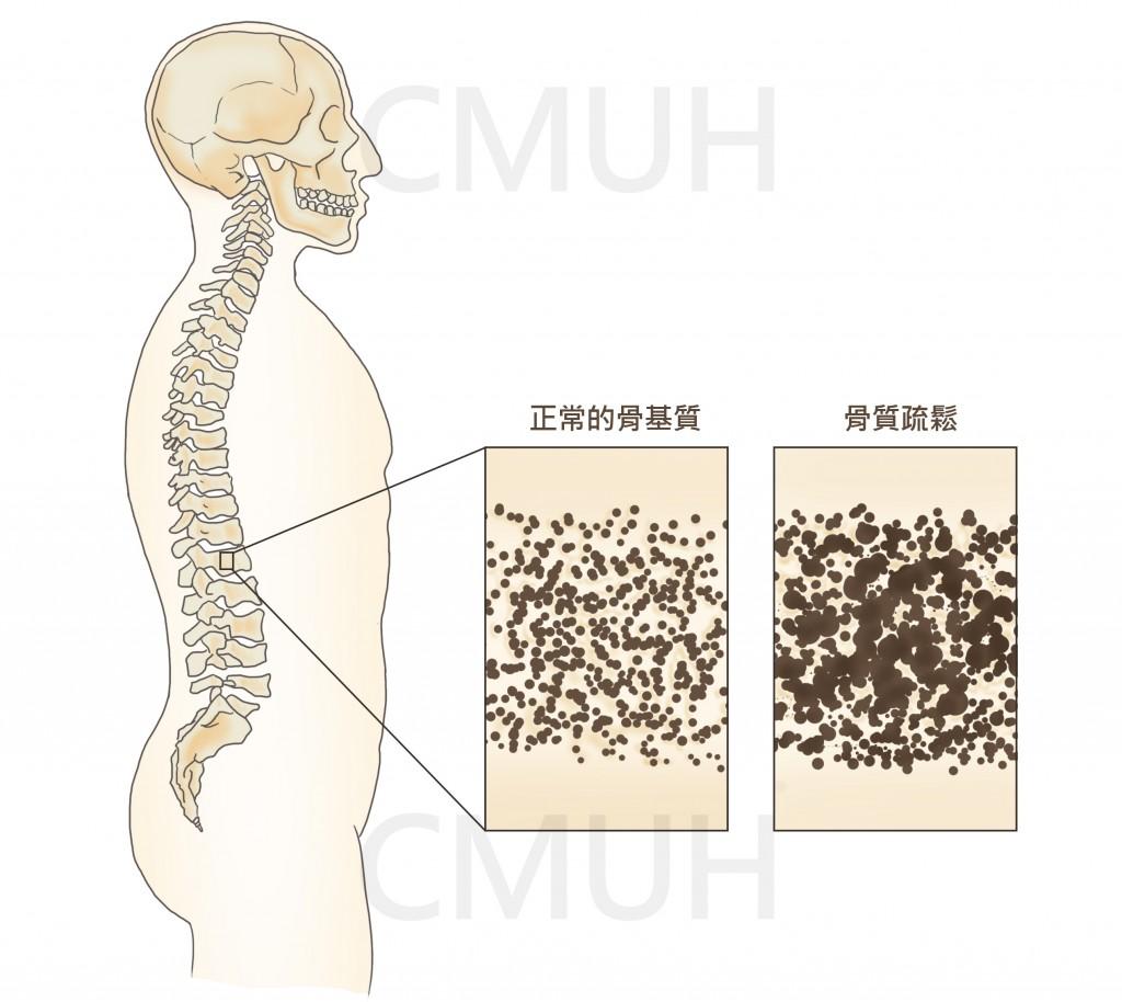 骨質密度檢查