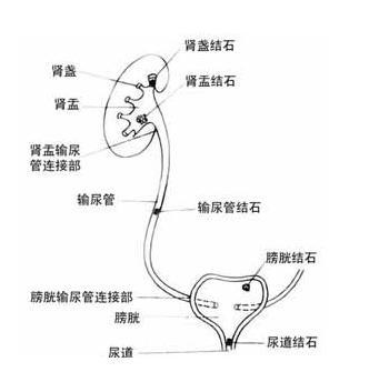 泌尿道結石