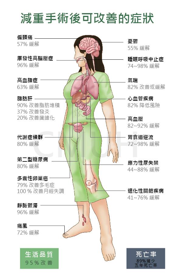 減重手術可改善疾病